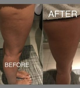 Image Result For Cold Therapy For Cellulite